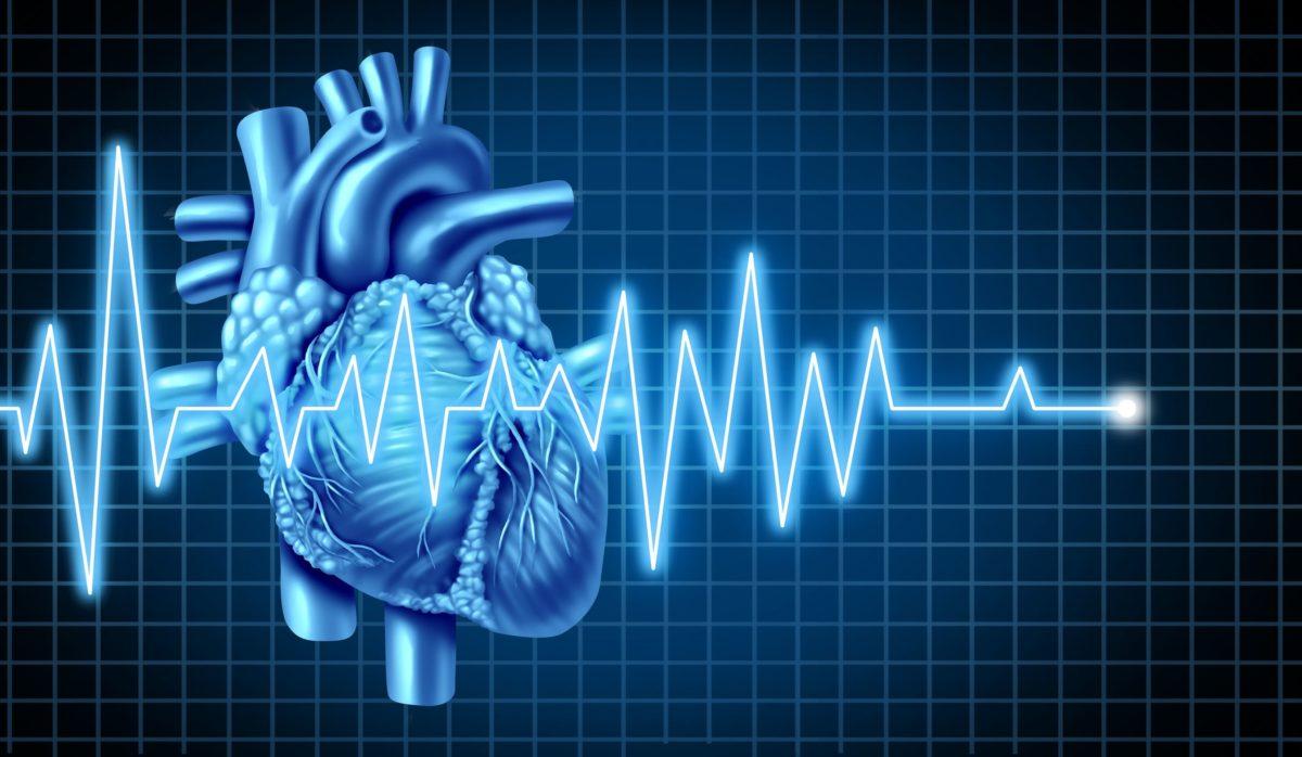 Miocardiopatía de tako-tsubo