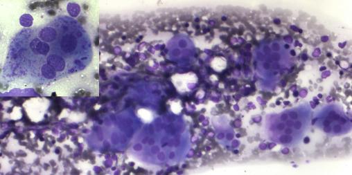 Osteopetrosis
