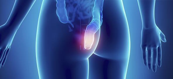 Trastorno del dolor extremo paroxístico