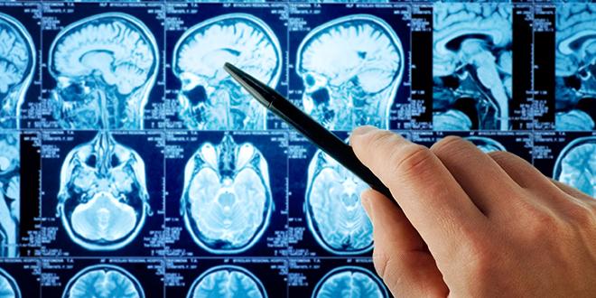 afecciones neurológicas raras