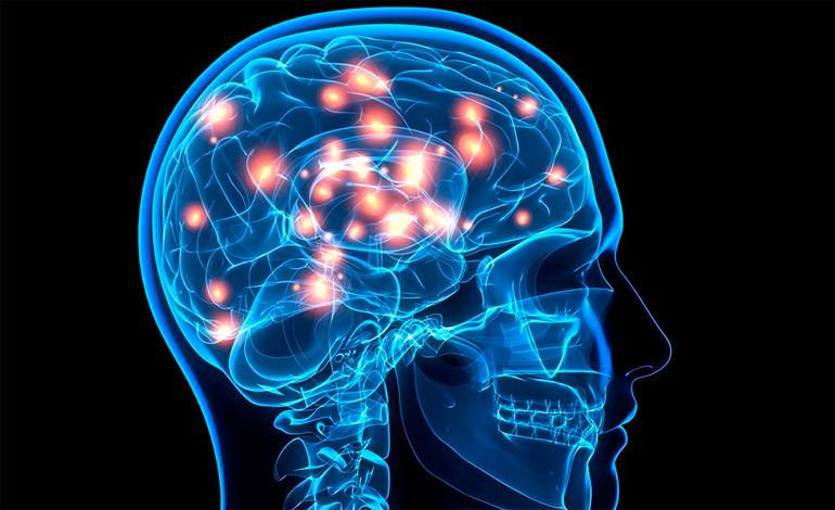 Encefalopatía epiléptica con desmielinización cerebral global