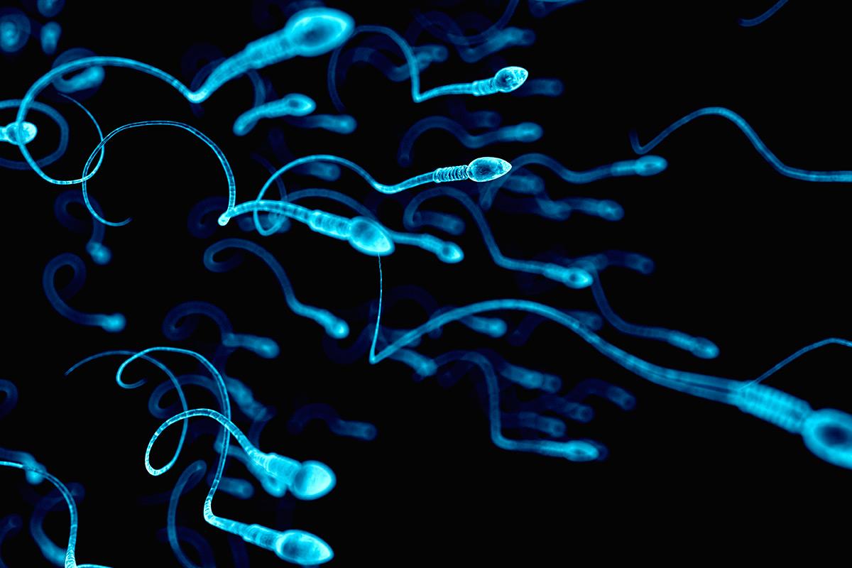 Infertilidad masculina no sindrómica por un trastorno de motilidad del esperma