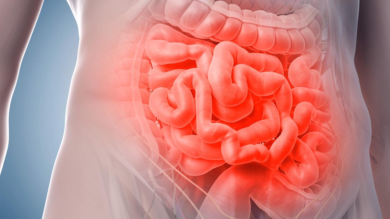 Insuficiencia intestinal crónica