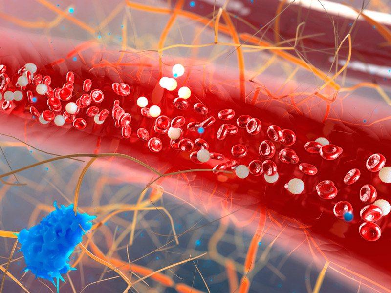 Los pacientes de anemia con MDS se benefician de Luspatercept en la carga de transfusión.