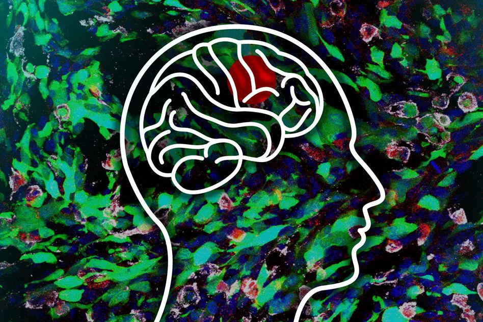 gliomas, terapias sistémicas, neurooncología
