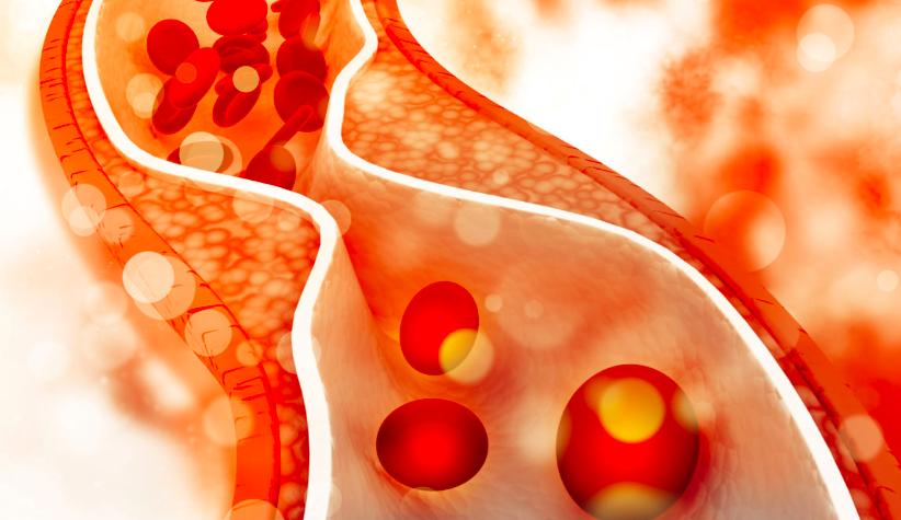 Las estatinas podrían proteger contra la enfermedad de las neuronas motoras