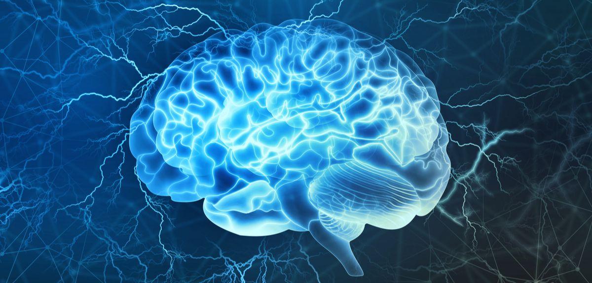 epilepsia infantil, síndrome de Dravet