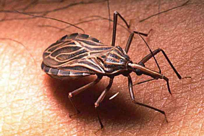 """""""Besos insectos"""" chupan sangre y hacen caca en tu cara. Así es como se propaga la enfermedad de Chagas."""