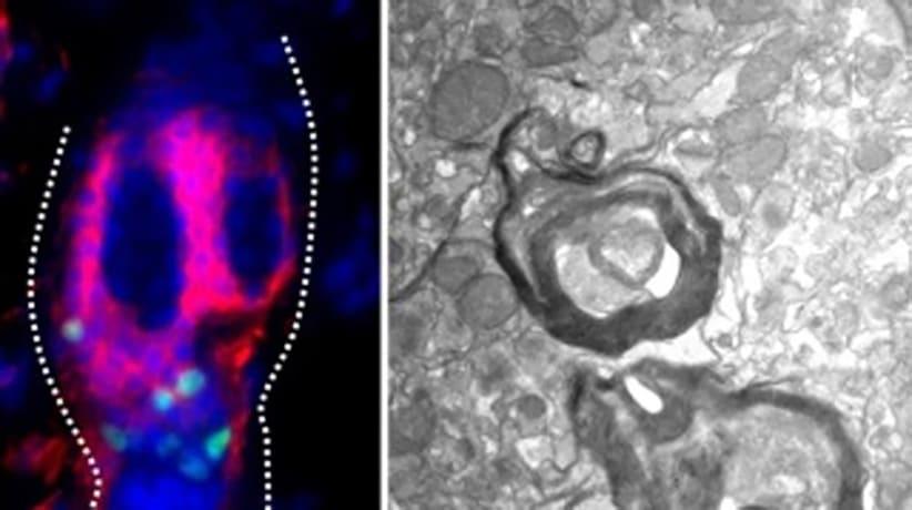 Las células madre del pelo tienen el potencial de reparar las neuronas dañadas