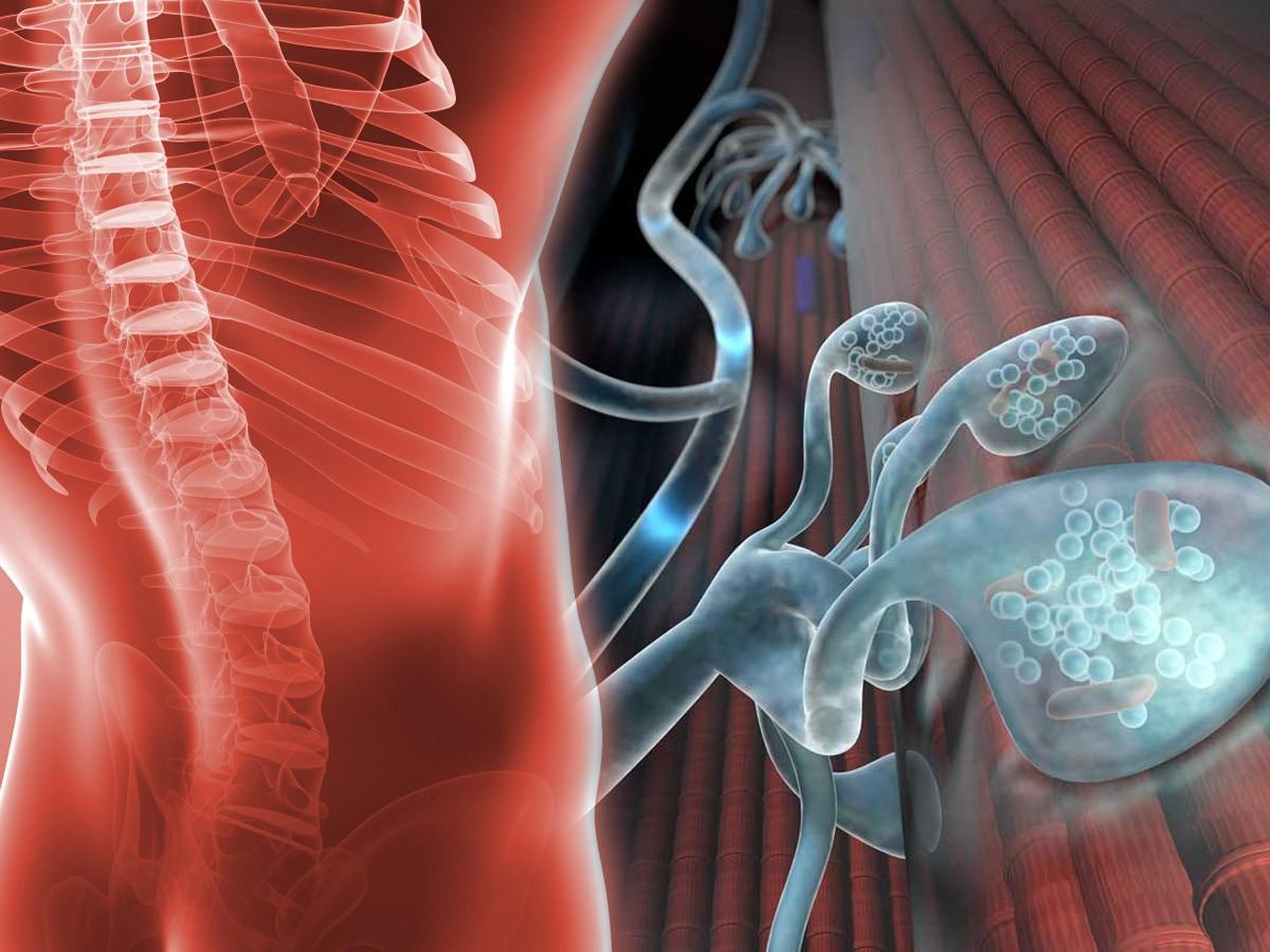 La FDA aprueba la amifampridina para el tratamiento de LEMS en niños
