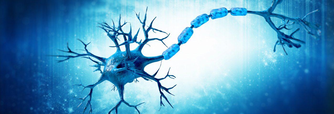 esclerosis múltiple, desmielinizacón
