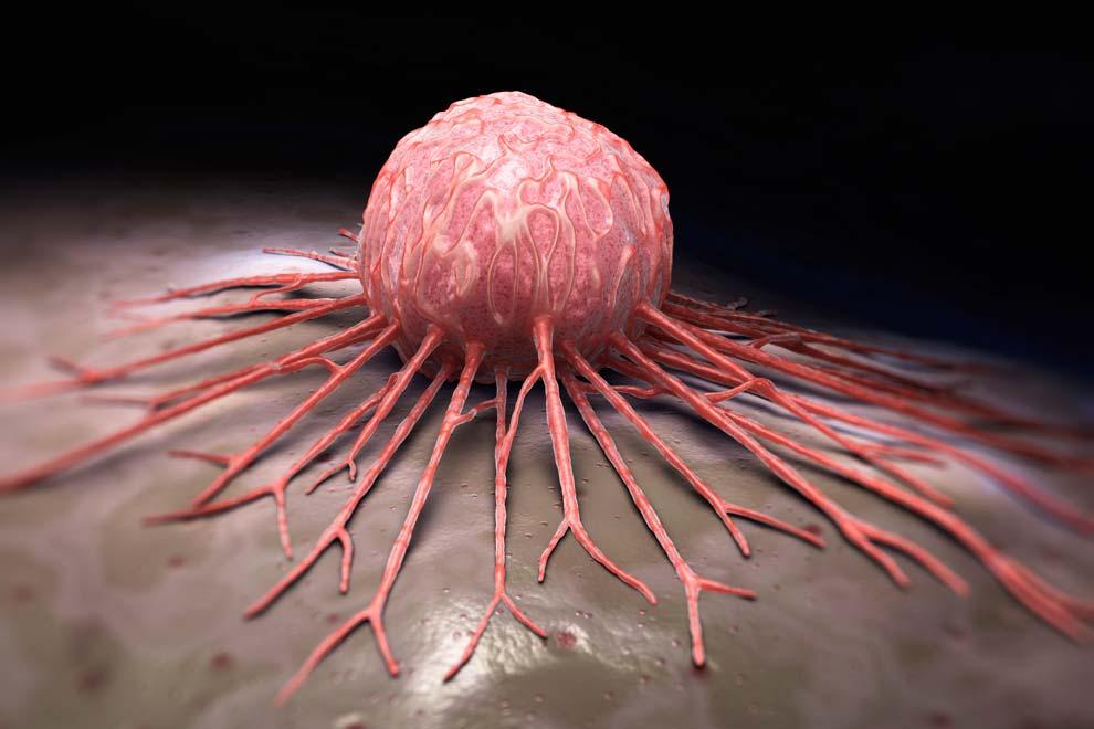 Darzalex® muestra mayor respuesta en pacientes recién diagnosticados con mieloma múltiple aptos para trasplantes