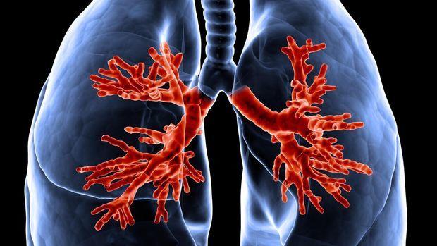 Bacteriófagos como tratamiento para infecciones bacterianas resistentes a antibióticos en pacientes de fibrosis quística