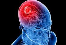tumor cerebral, glioma