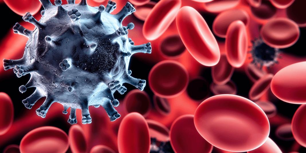 púrpura trombocitopénica autoinmune