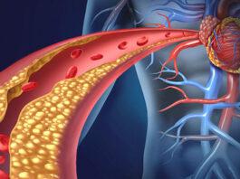 Hipercolesterolemia familiar, evolocumab tratamiento