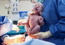 Primer caso de transmisión del SARS-CoV-2 de madre a hijo a traves de la placenta
