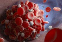 detección recien nacidos, células falciformes