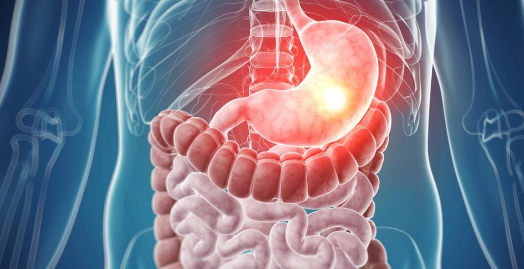 tumores del estroma gastrointestinal
