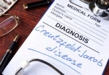 enfermedades priónicas, tratamiento