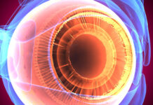 nanopartículas de polímero, distrofia retiniana