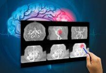 tumor cerebral, investigaciónes_biomédicas