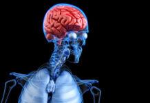 mecanismo inmunitario, muerte celular, enfermedad de Huntington