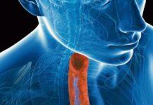 Dupilumab tratamiento, esofagitis eosinofílica