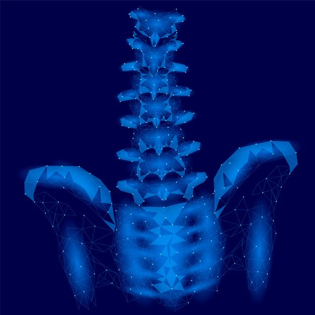 características clínicas osteomielitis crónica no bacteriana