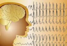 Análisis descriptivo electroencefalograma síndrome de Angelman