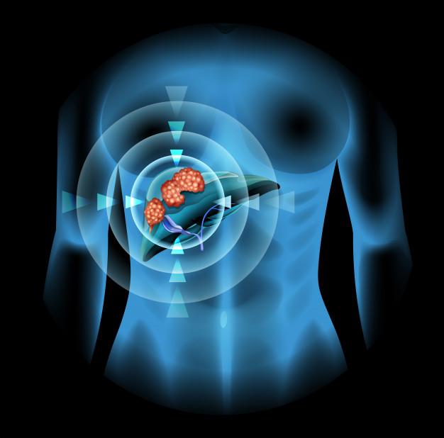 gran paso tratamiento carcinoma hepatocelular
