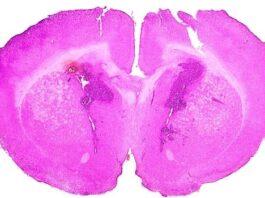 terapia glioma Adastra Pharma resultados positivos en la fase Ib