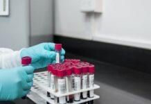 GeneDx está ampliando las pruebas genéticas para las formas de ataxia hereditaria