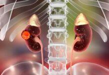 La National Comprehensive Cancer Network crea pautas para tratamiento tumor de Wilms