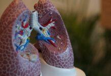 La anamicina para metástasis pulmonares de sarcoma tejido blando obtuvo designación de vía rápida