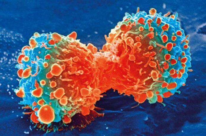 Células inmunitarias promotoras de tumores capacitadas para combatir el tipo de cáncer cerebral más agresivo