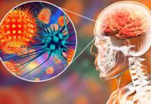 Virus Nipah: letal entre el 40 y 75 por ciento de los casos