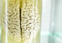 La atrofia del córtex cerebral se relaciona con apatía en pacientes de Huntington