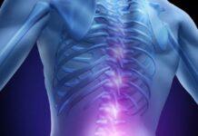 Los pacientes con ELA presentan alteraciones lipídicas en las células de la médula espinal